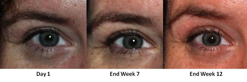 Health & Beauty: After 12 Weeks, Seeing Lush Lashes with Fysiko Lash Growth Serum