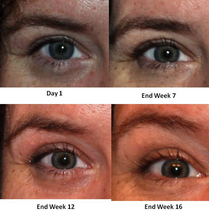 "Health & Beauty: ""Eye"" See a Difference After Using Fysiko Lash Growth Serum"